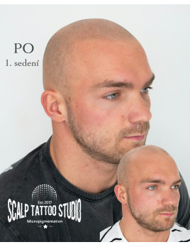 Scalp Tattoo Studio